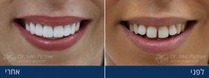 ציפוי שיניים – כל מה שאתם צריכים לדעת ב-3 דקות